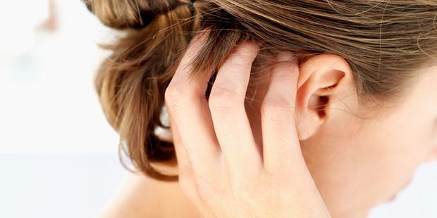 capelli prurito